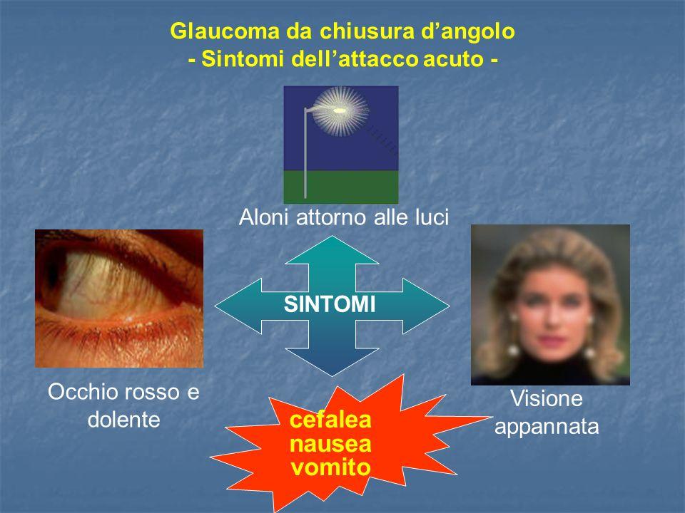 Glaucoma da chiusura d'angolo - Sintomi dell'attacco acuto -