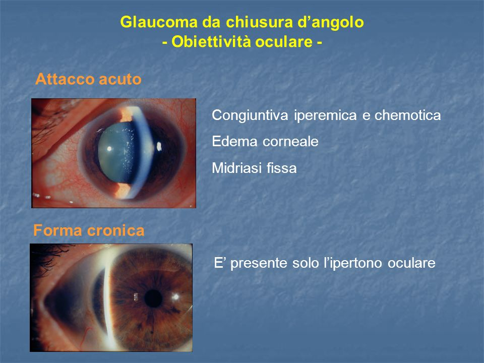 Glaucoma da chiusura d'angolo - Obiettività oculare -
