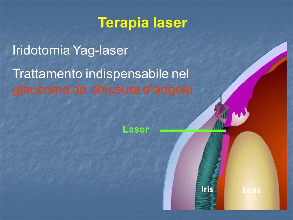 Terapia laser Iridotomia Yag-laser