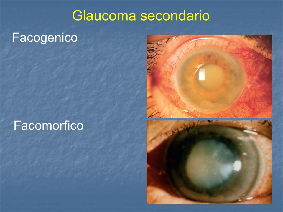 Glaucoma secondario Facogenico Facomorfico