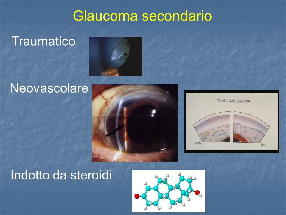 Glaucoma secondario Traumatico Neovascolare Indotto da steroidi