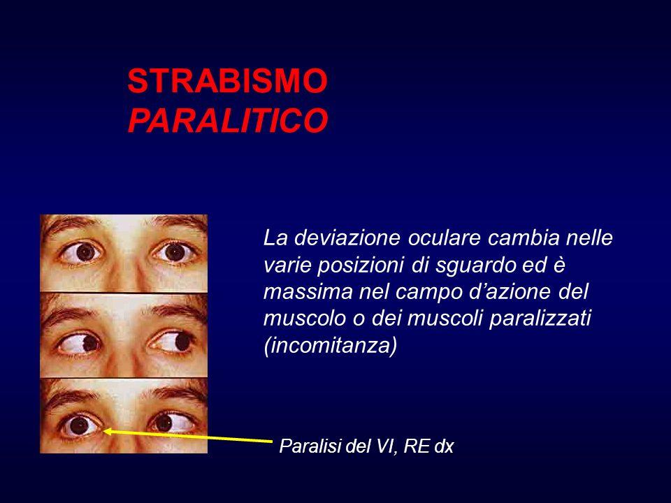STRABISMO PARALITICO
