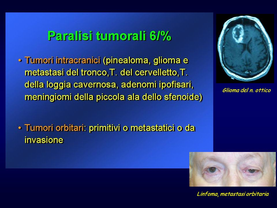 Linfoma, metastasi orbitaria
