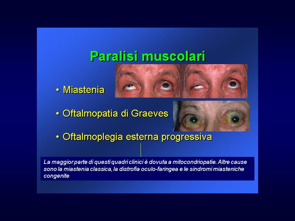 La maggior parte di questi quadri clinici è dovuta a mitocondriopatie