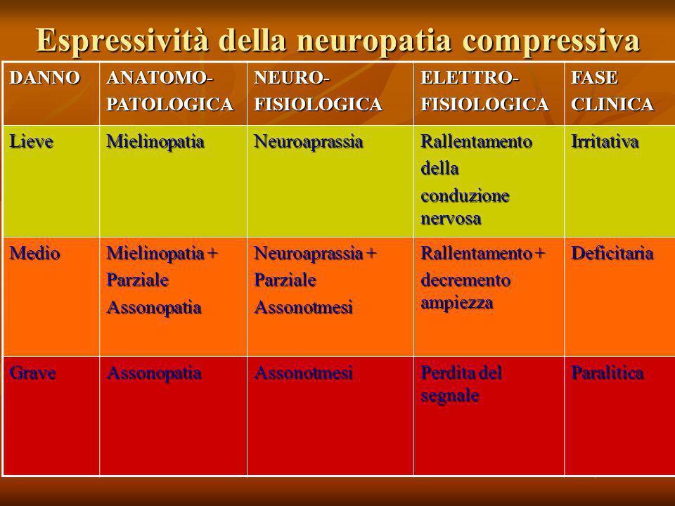 Espressività della neuropatia compressiva