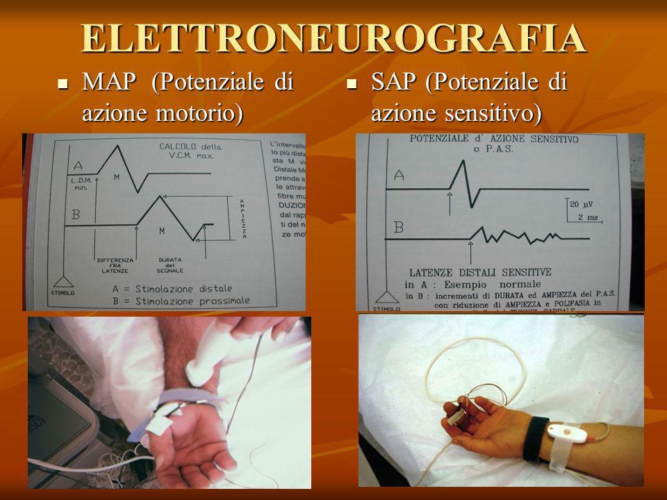 ELETTRONEUROGRAFIA MAP (Potenziale di azione motorio)