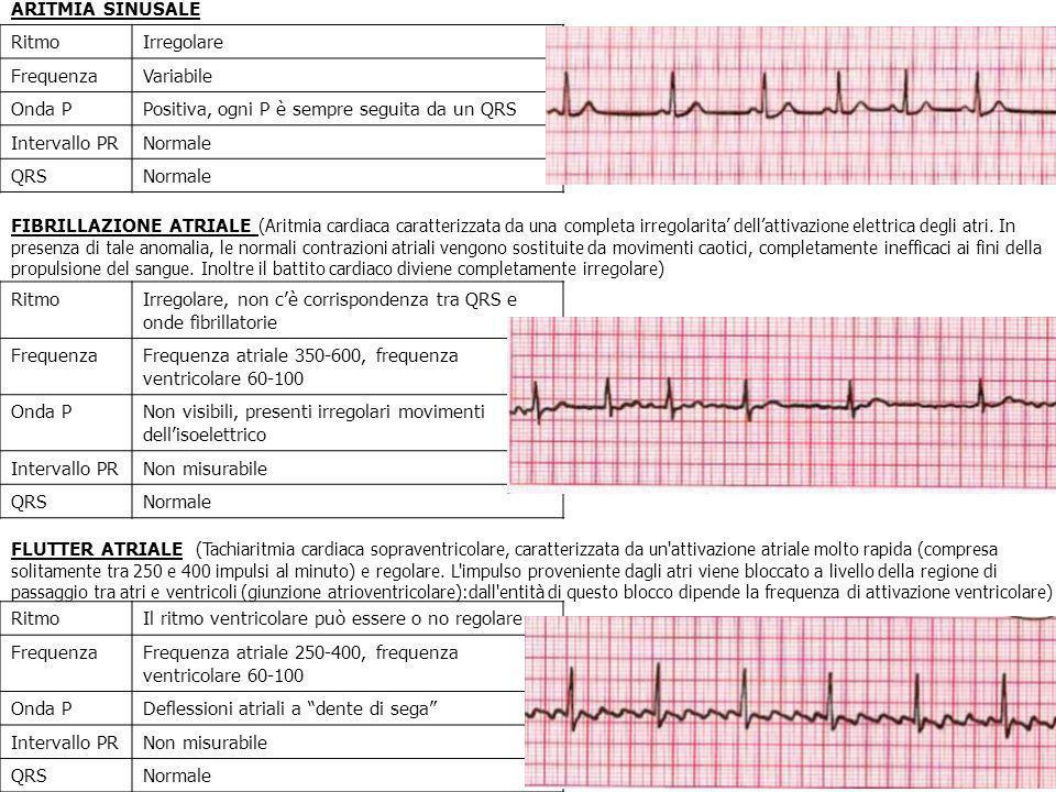 ARITMIA SINUSALE Ritmo. Irregolare. Frequenza. Variabile. Onda P. Positiva, ogni P è sempre seguita da un QRS.
