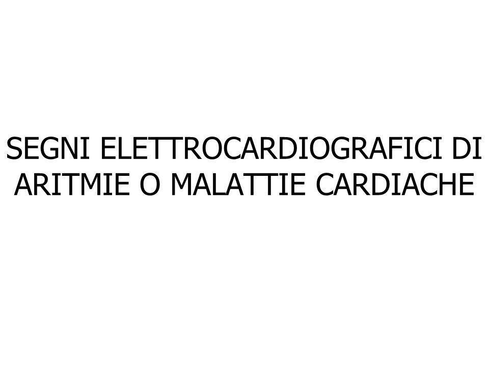 SEGNI ELETTROCARDIOGRAFICI DI ARITMIE O MALATTIE CARDIACHE
