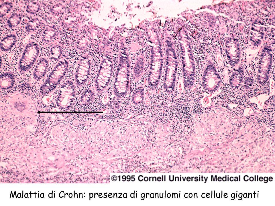 Malattia di Crohn: presenza di granulomi con cellule giganti