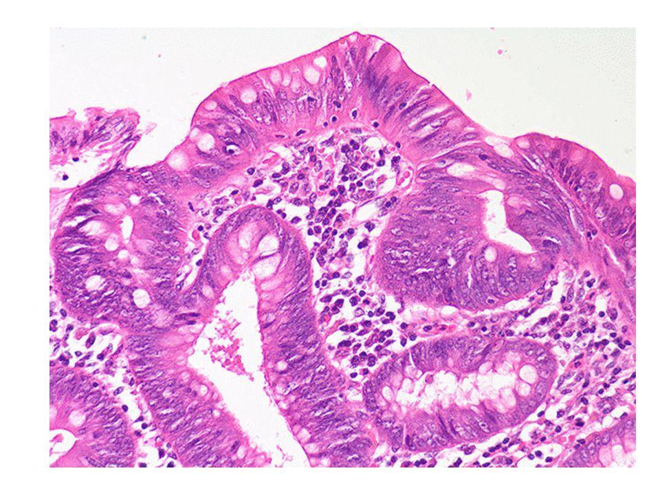 Polipo adenomatoso colon
