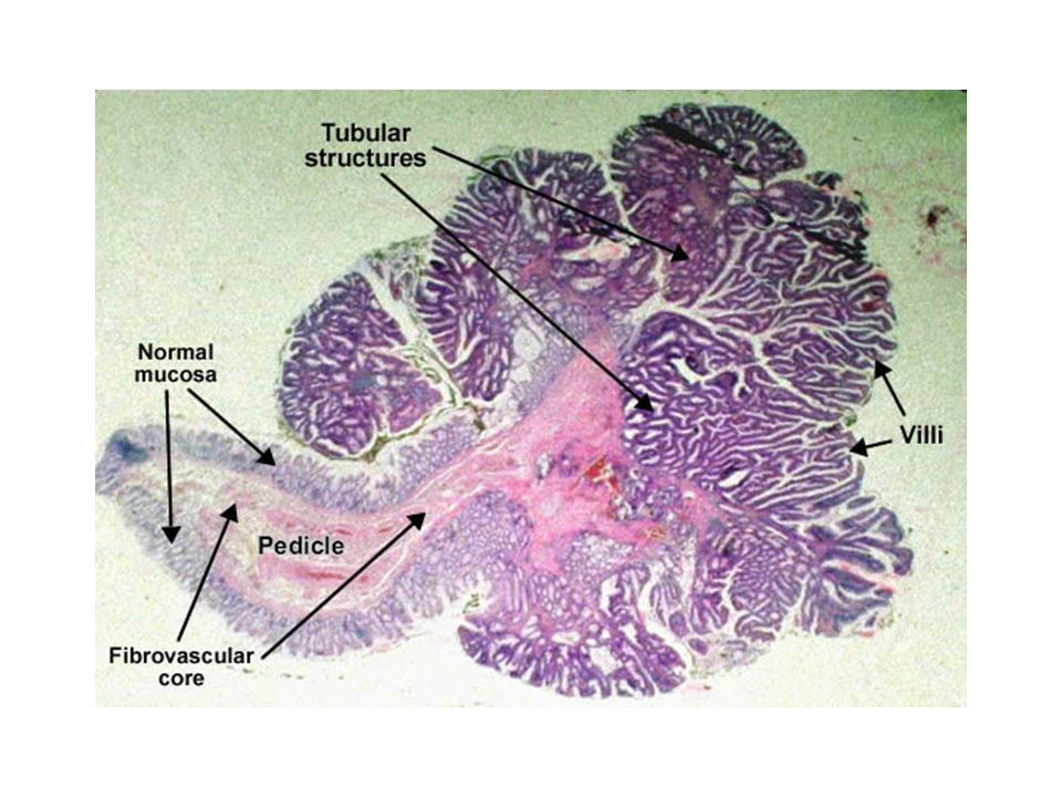 Adenoma tubulo-villoso