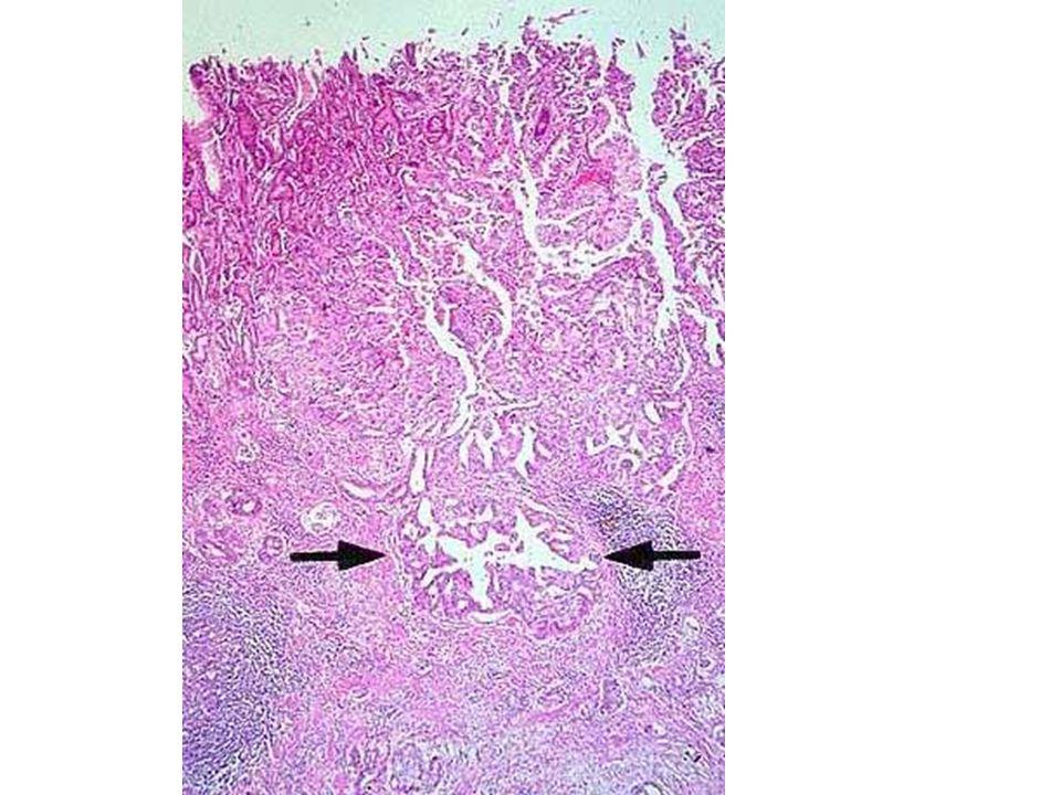 Ghiandole neoplastiche all'interno della sottomucosa