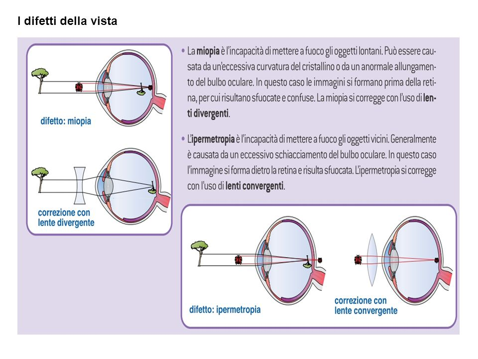I difetti della vista 6