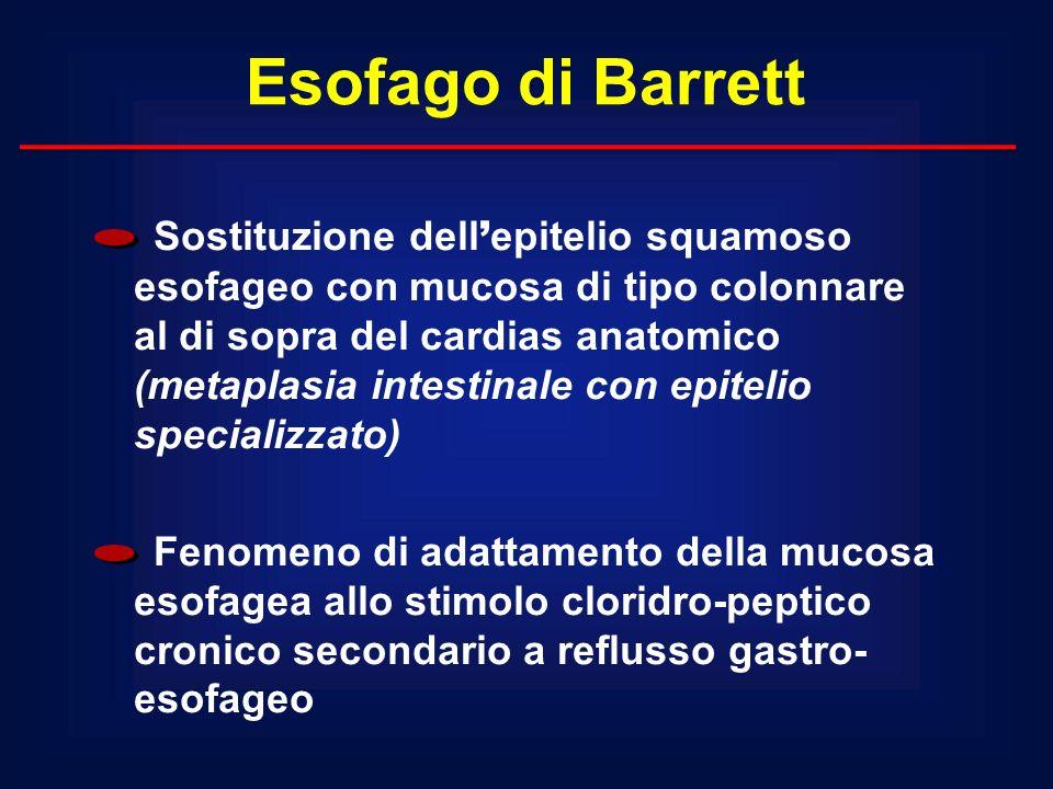 Esofago di Barrett