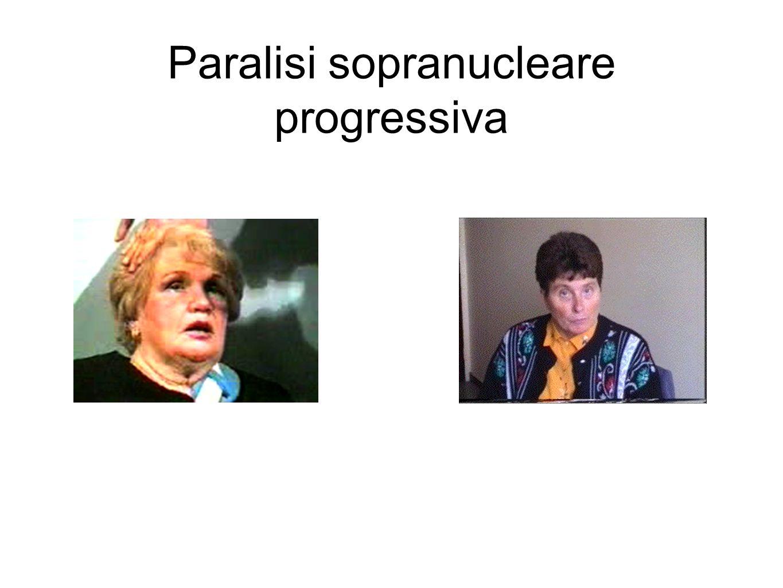 Paralisi sopranucleare progressiva