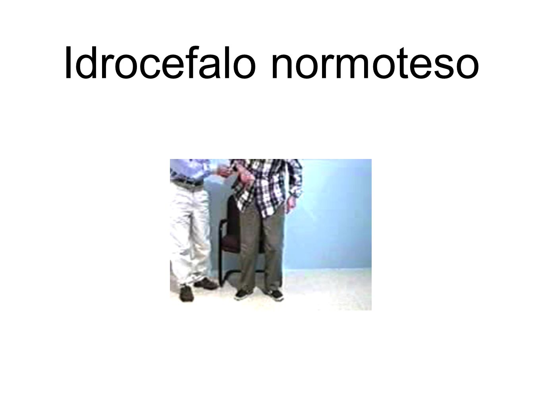Idrocefalo normoteso