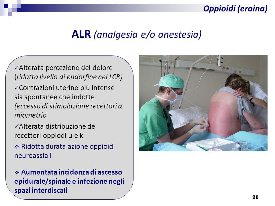 ALR (analgesia e/o anestesia)