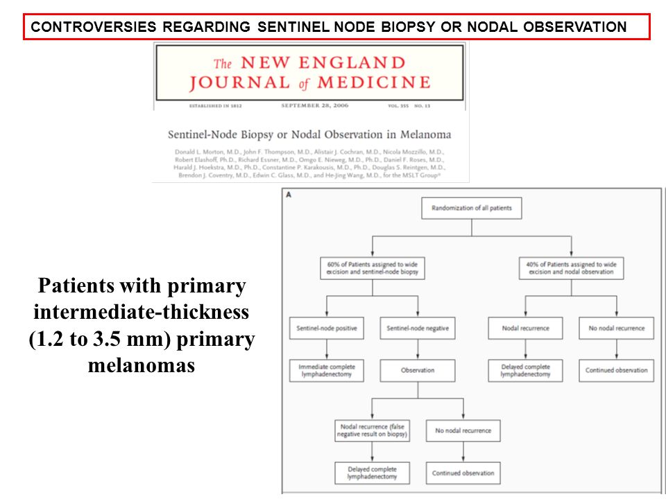 CONTROVERSIES REGARDING SENTINEL NODE BIOPSY OR NODAL OBSERVATION