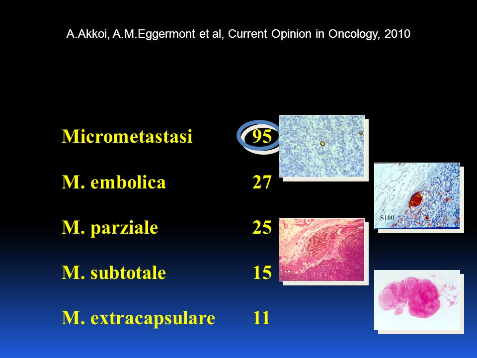 A.Akkoi, A.M.Eggermont et al, Current Opinion in Oncology, 2010