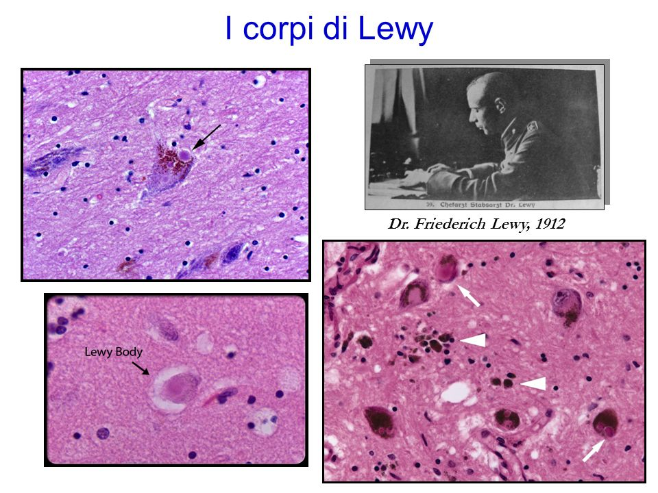 I corpi di Lewy Dr. Friederich Lewy, 1912