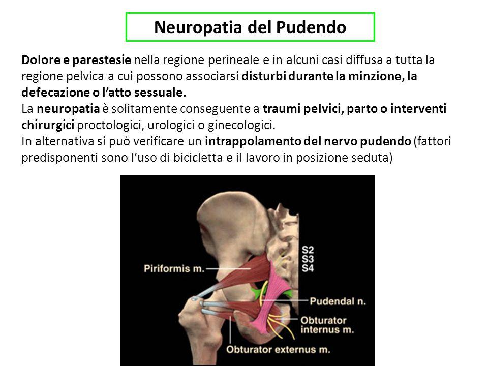 Neuropatia del Pudendo