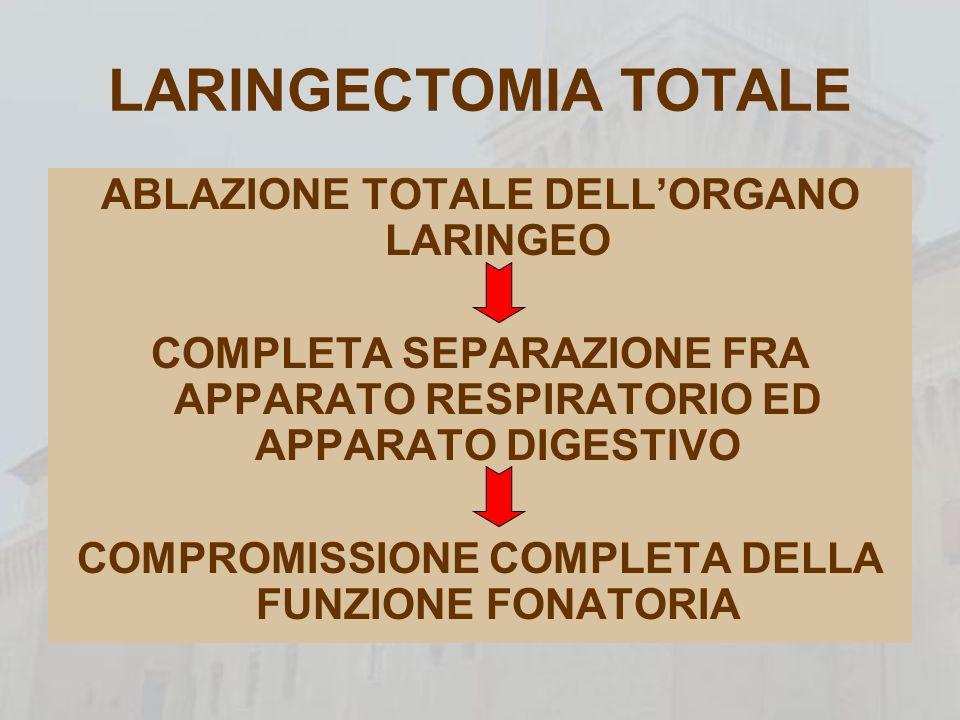 LARINGECTOMIA TOTALE ABLAZIONE TOTALE DELL'ORGANO LARINGEO