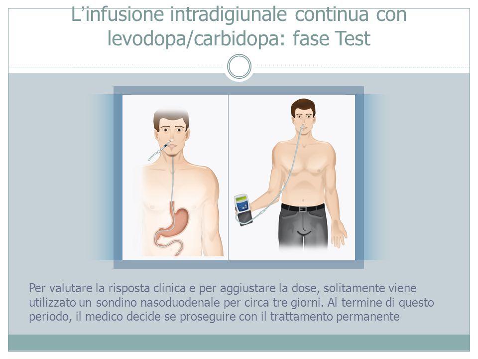 L'infusione intradigiunale continua con levodopa/carbidopa: fase Test