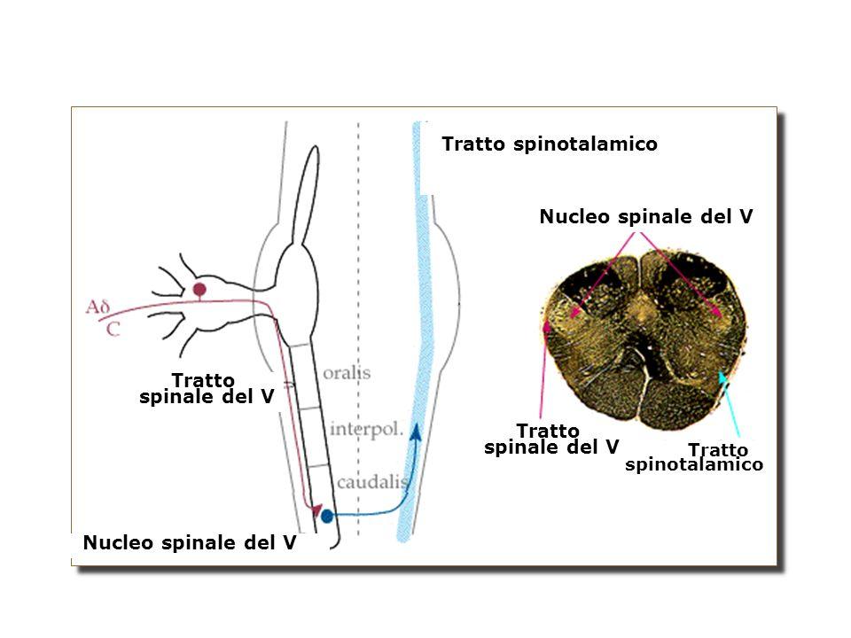 Tratto spinotalamico Nucleo spinale del V Tratto spinale del V Tratto