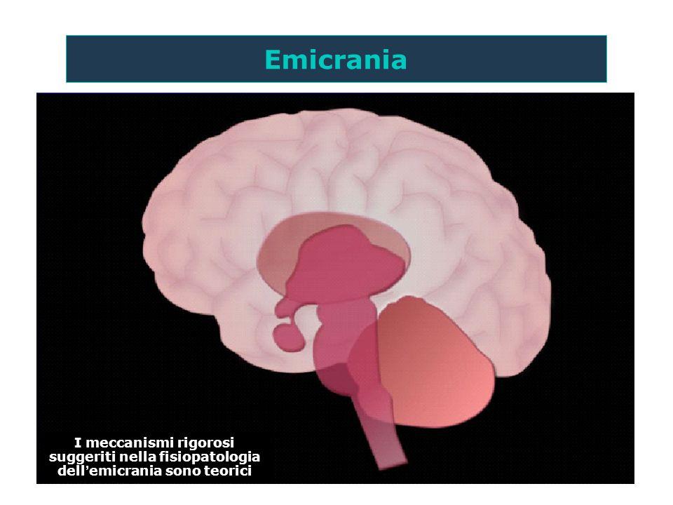 Emicrania I meccanismi rigorosi suggeriti nella fisiopatologia dell'emicrania sono teorici