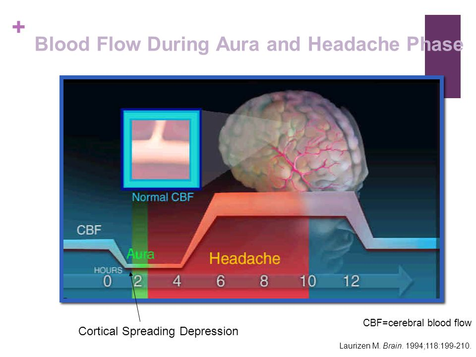 Blood Flow During Aura and Headache Phase