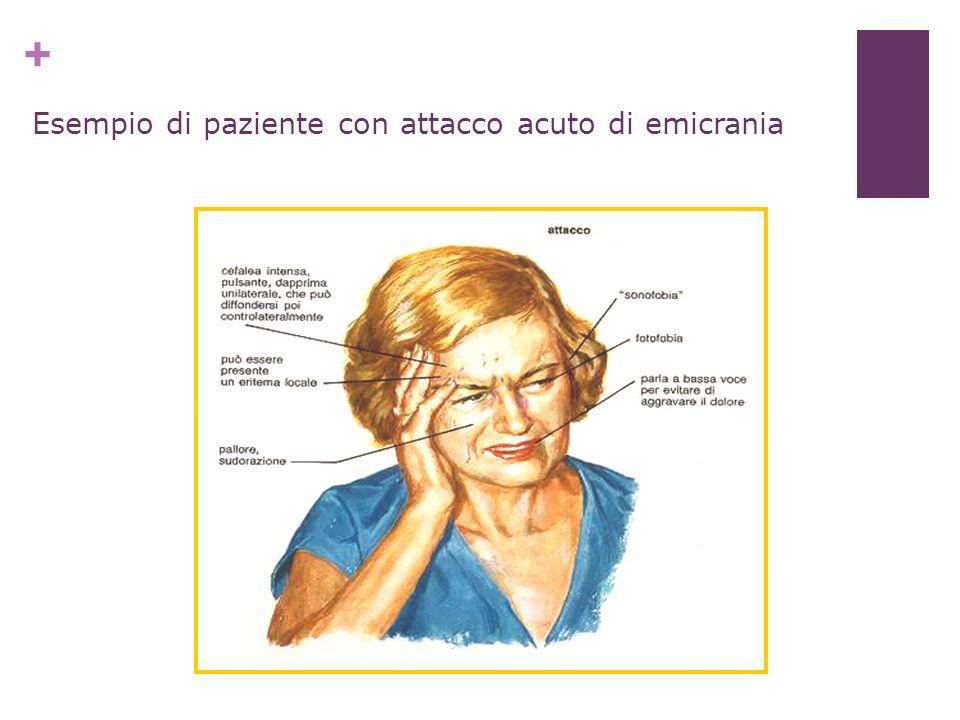 Esempio di paziente con attacco acuto di emicrania