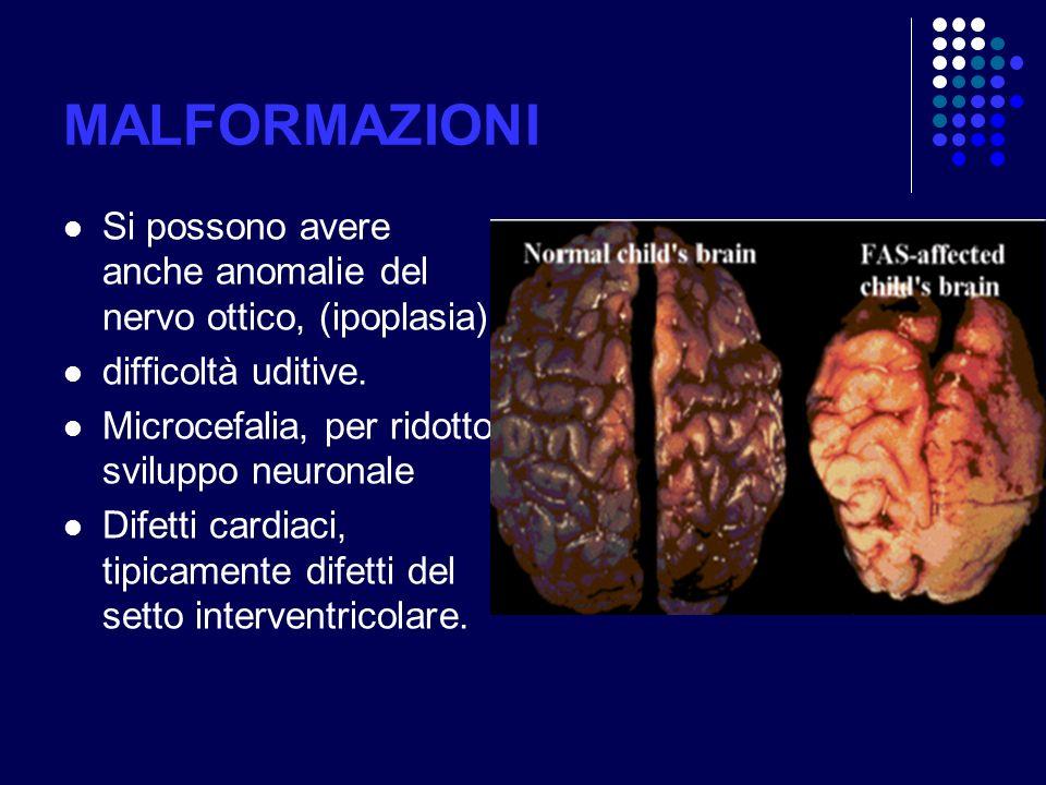 MALFORMAZIONI Si possono avere anche anomalie del nervo ottico, (ipoplasia) difficoltà uditive. Microcefalia, per ridotto sviluppo neuronale.