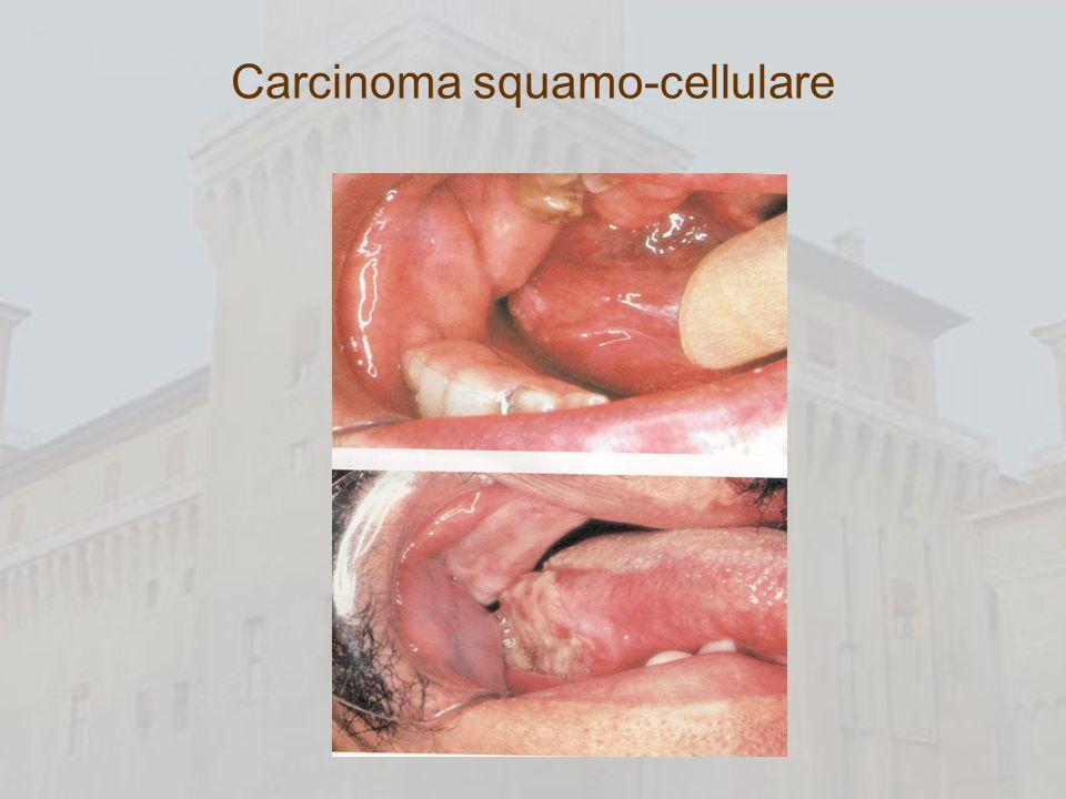 Carcinoma squamo-cellulare
