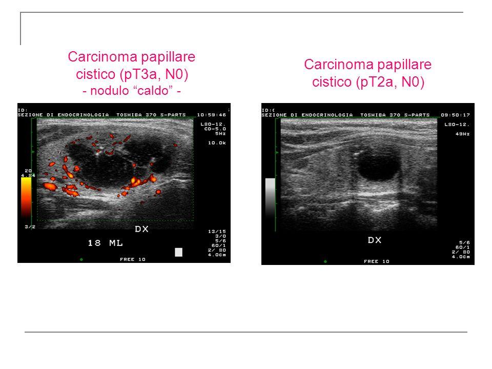 Carcinoma papillare cistico (pT3a, N0) - nodulo caldo -