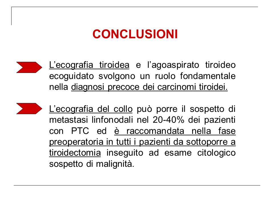 CONCLUSIONI L'ecografia tiroidea e l'agoaspirato tiroideo ecoguidato svolgono un ruolo fondamentale nella diagnosi precoce dei carcinomi tiroidei.