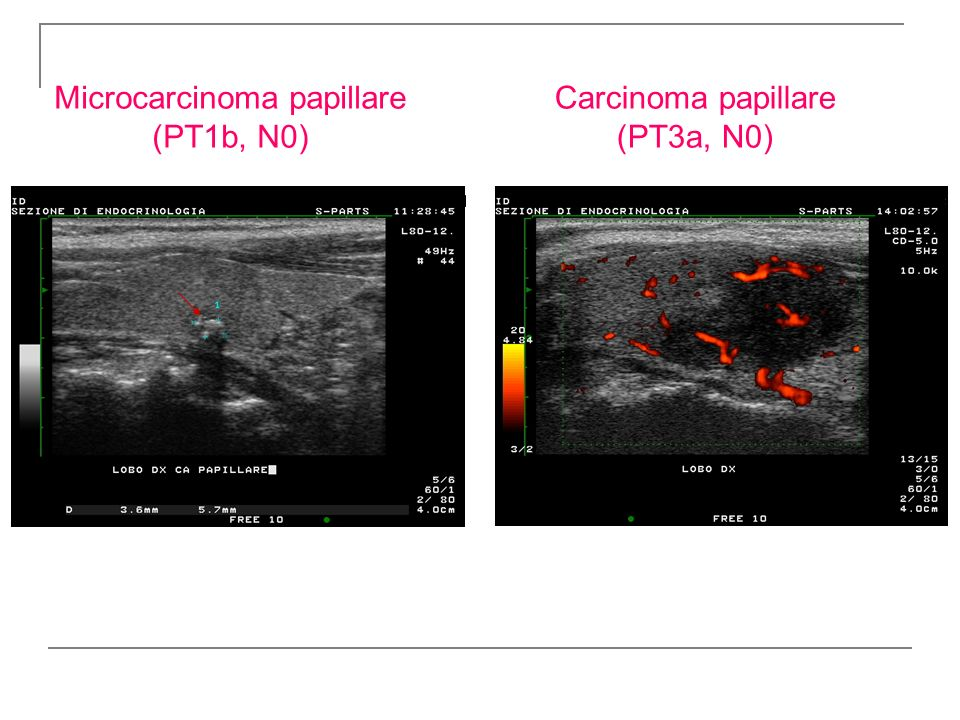 Carcinoma papillare (PT3a, N0)