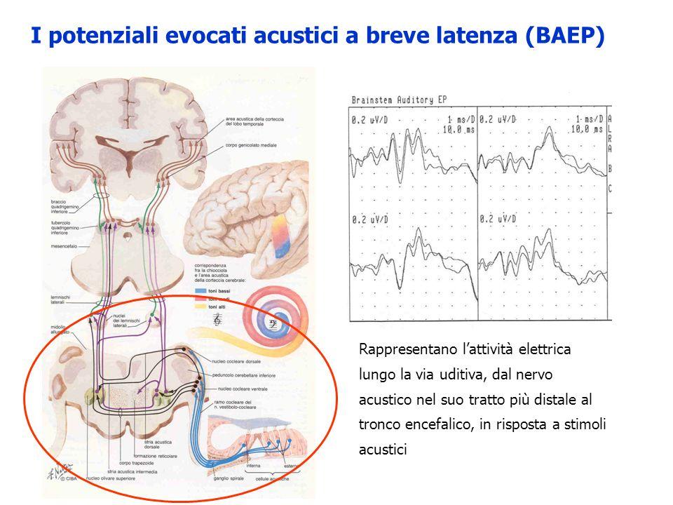 I potenziali evocati acustici a breve latenza (BAEP)