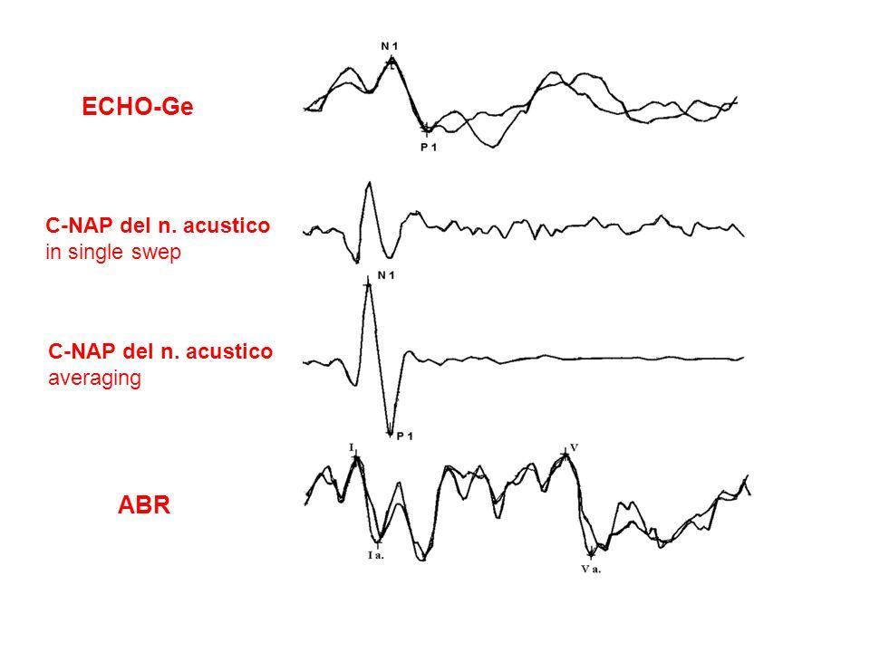 ECHO-Ge ABR C-NAP del n. acustico in single swep C-NAP del n. acustico