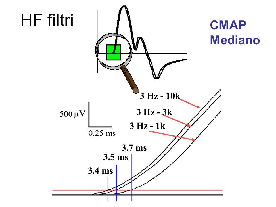 HF filtri CMAP Mediano 3 Hz - 10k 3 Hz - 3k 3 Hz - 1k 3.7 ms 3.5 ms