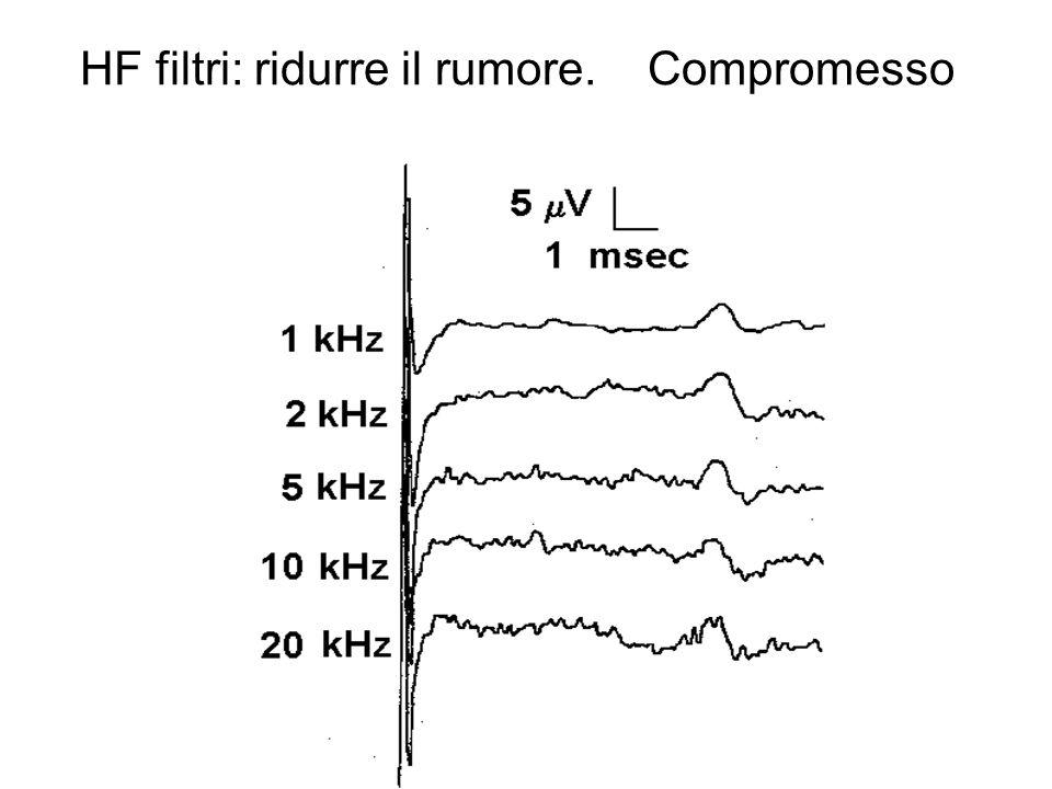 HF filtri: ridurre il rumore. Compromesso