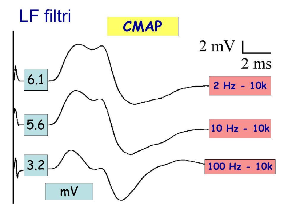 LF filtri CMAP 6.1 2 Hz - 10k 5.6 10 Hz - 10k 3.2 100 Hz - 10k mV