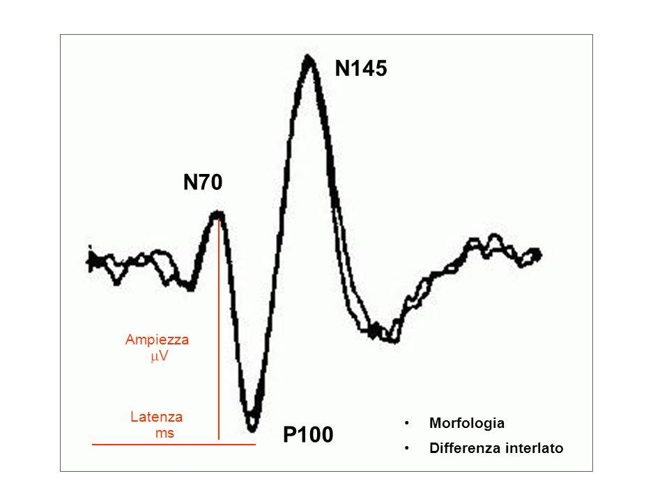 N145 N70 Ampiezza mV Latenza ms Morfologia Differenza interlato P100