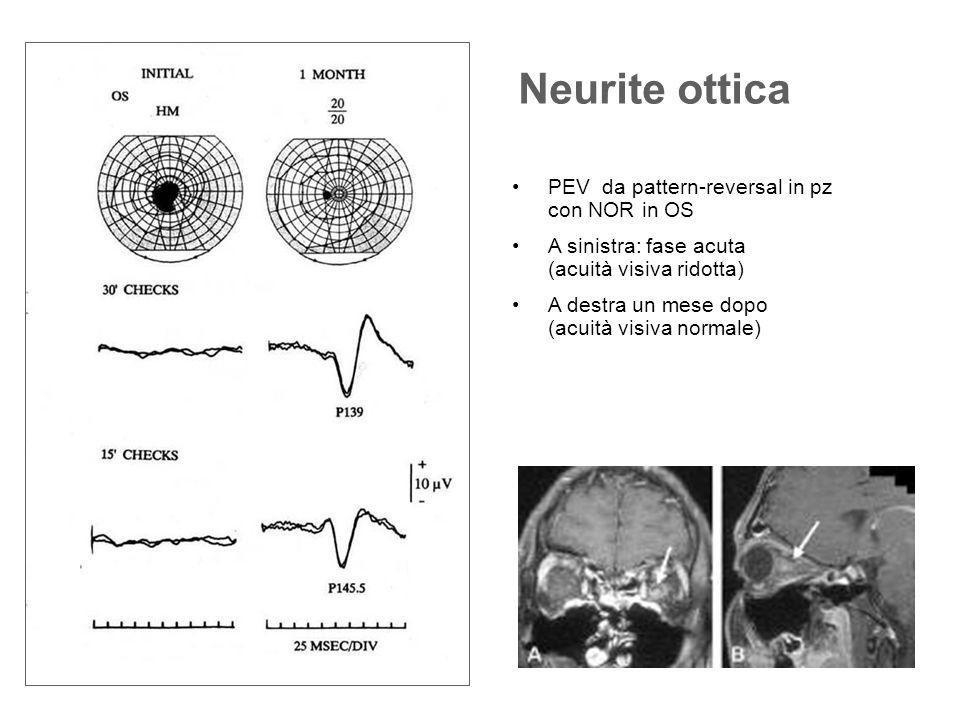 Neurite ottica PEV da pattern-reversal in pz con NOR in OS