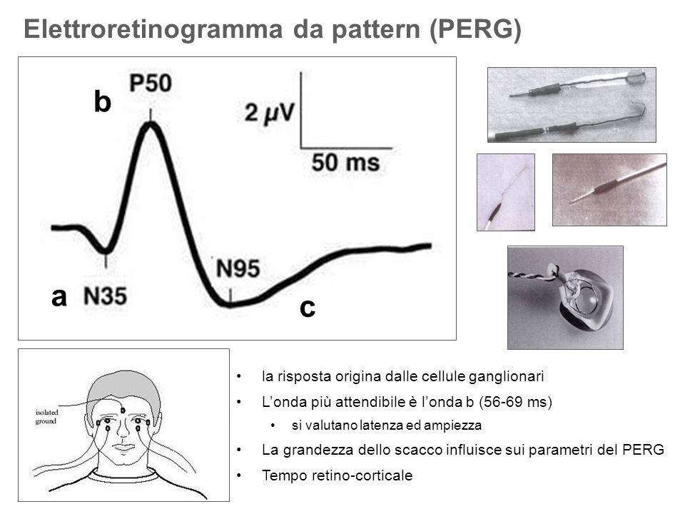 b a c Elettroretinogramma da pattern (PERG)