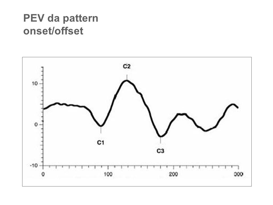 PEV da pattern onset/offset