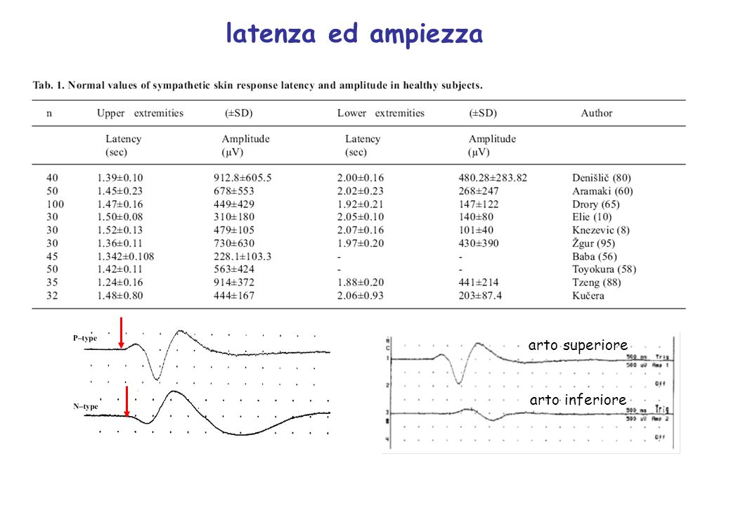 latenza ed ampiezza arto superiore arto inferiore