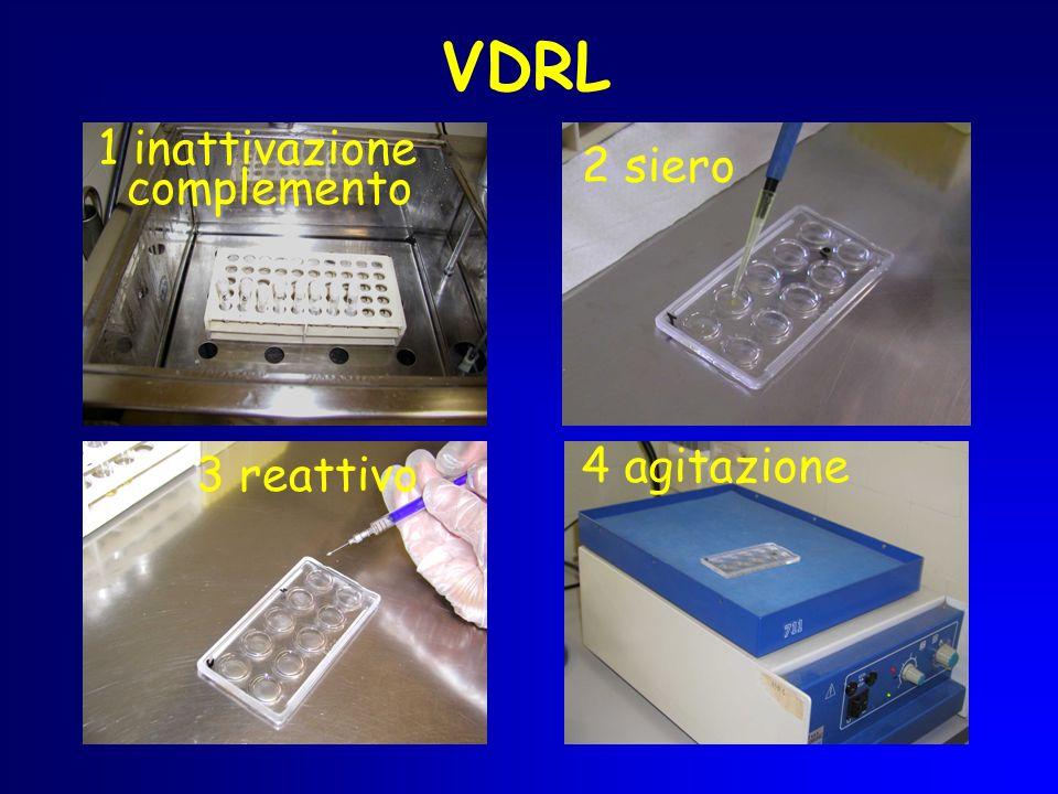 VDRL 1 inattivazione complemento 2 siero 4 agitazione 3 reattivo