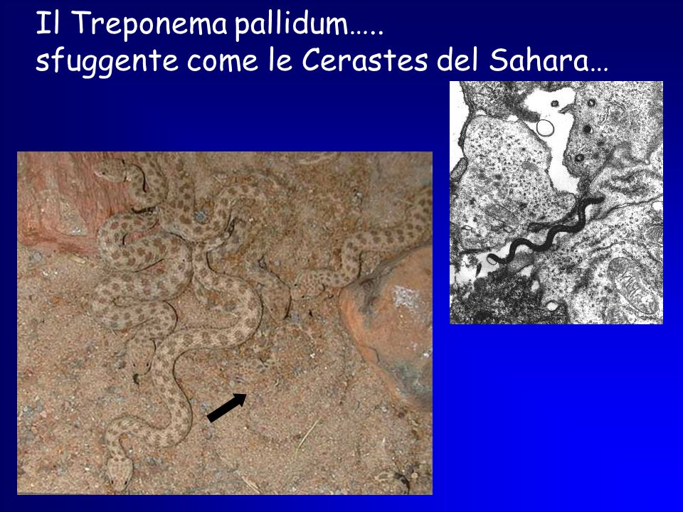 Il Treponema pallidum…..