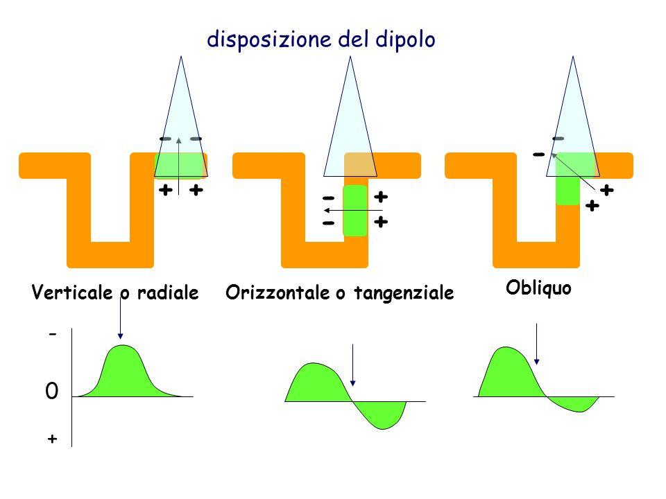 Orizzontale o tangenziale