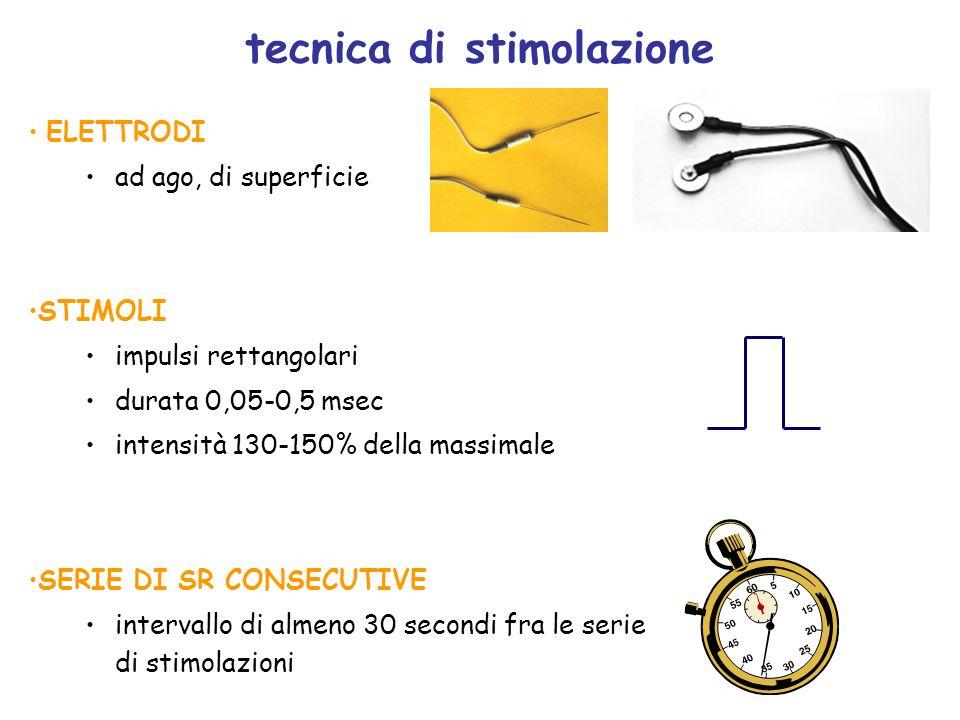 tecnica di stimolazione
